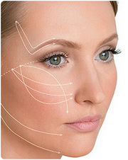 Fine Thread Contour Lift Chandigarh