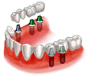 Dental Implant India | Affordable Dental Implant in india| Dental Tour